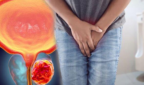 Болки в простатата